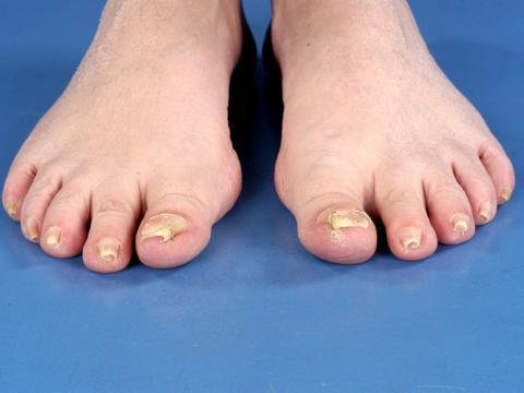 rurkowate paznokcie u nóg