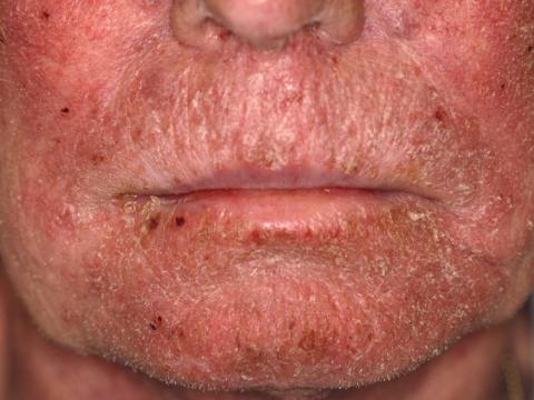 sorafenib rogowacenie skóry