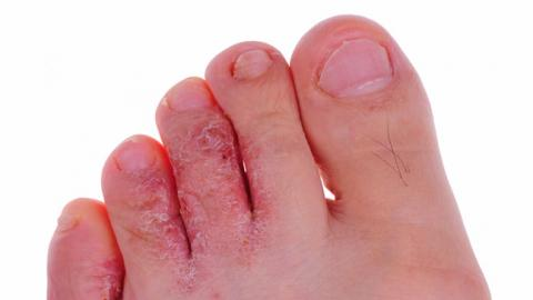 stopa sportowca zdjęcia objawy