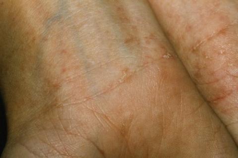 świerzb zdjęcia skóry zapobieganie