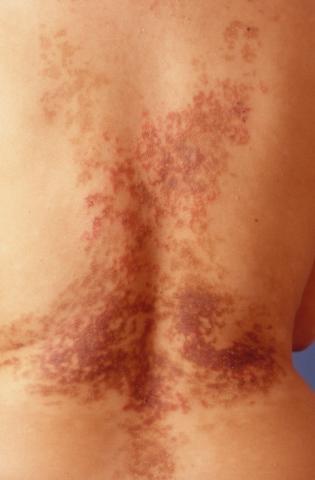 świerzbiączka na plecach barwnikowa