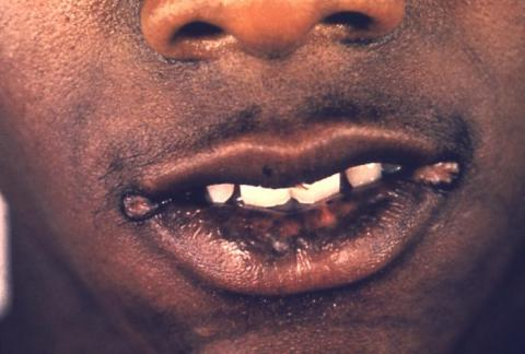 syphilis mouth