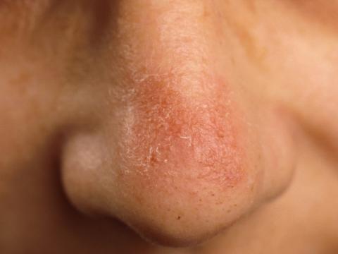 toczeń skórny na nosie