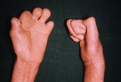 trąd ręce