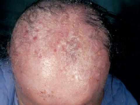 Utrata włosów i łysienie w toczniu