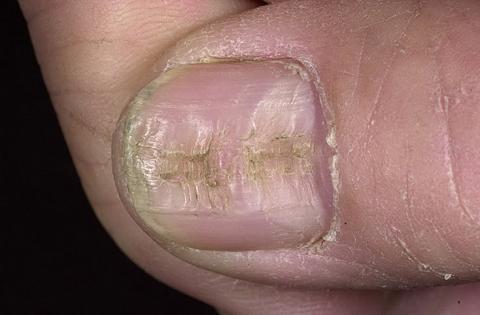 wklęsły paznokieć