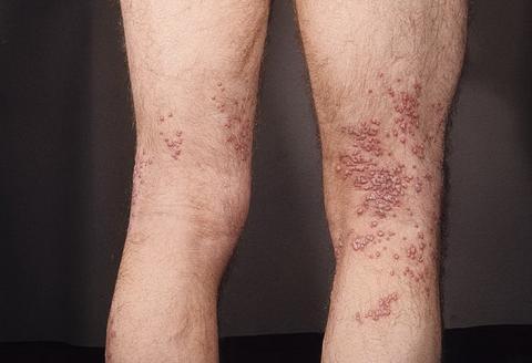 wyprysk opryszczkowy kaposiego nogi
