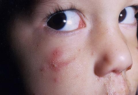 wyprysk opryszczkowy u dzieci