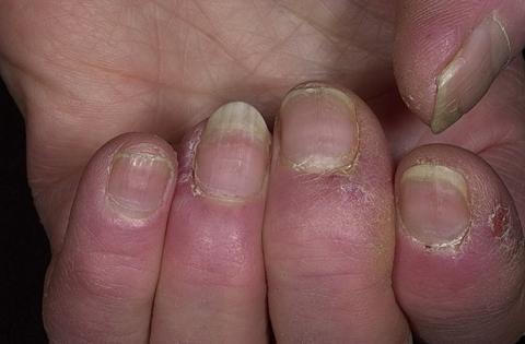 zanokcica palców