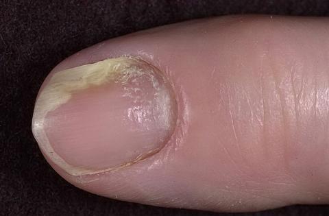 zanokcica zdjęcia palca