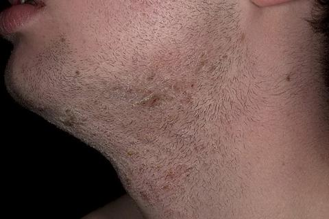 Zapalenie mieszków włosowych brody