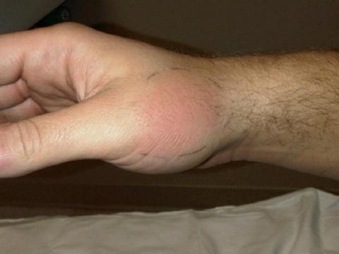 zapalenie naczyń chłonnych dłoni