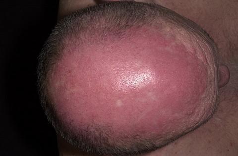 zapalenie skórno-mięśniowe głowa