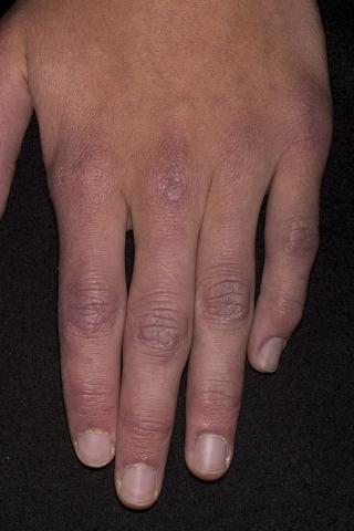 zapalenie skórno-mięśniowe na dłoni
