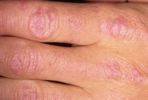 zapalenie skórno-mięśniowe palce