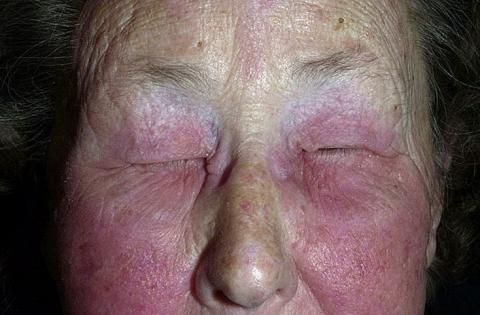 zapalenie skóry twarzy