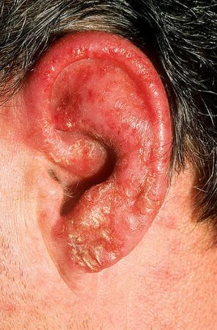 zapalenie ucha