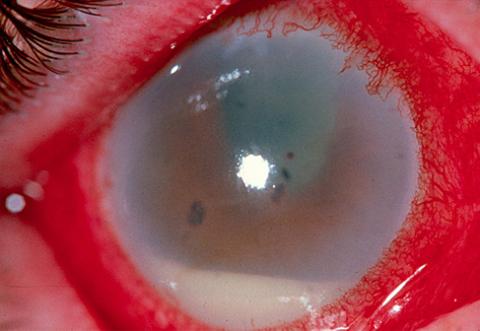 zapalenie wnętrza gałki ocznej symptom