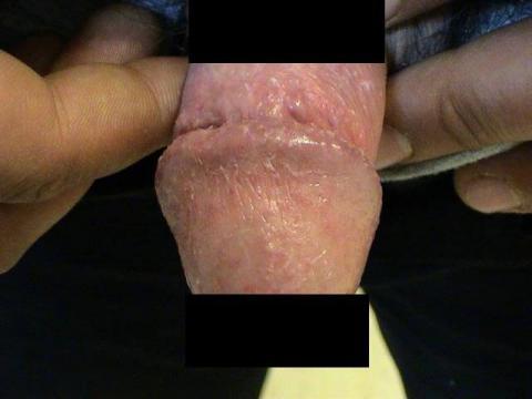 Balanitis zapalenie żołędzi