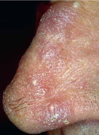 paraneoplastyczne rogowacenie dłoni i stóp