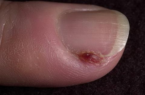 ziarniak skóry zdjęcia paznokci