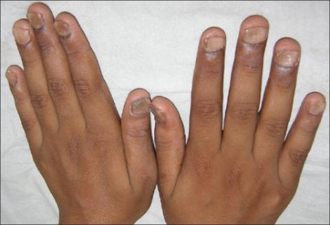 zmiany na 20 paznokciach