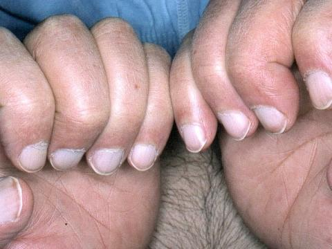 zmiany płytki paznokciowej