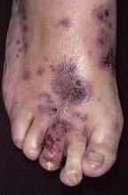 alergiczne zapalenie naczyń krwionośnych na stopie