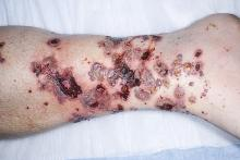 alergiczne zapalenie naczyń objawy