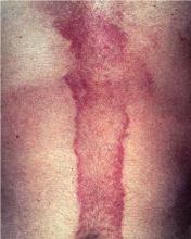 berloque dermatitis mężczyzna