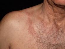 berloque dermatitis szyja