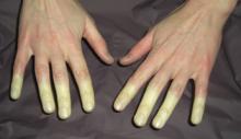 białe palce