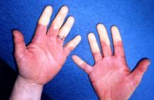 białe palce u rąk