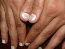 biały paznokieć