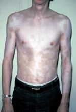 bielactwo na ciele
