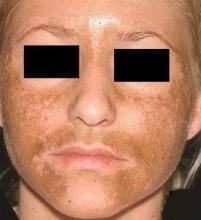 brązowe plamy na twarzy