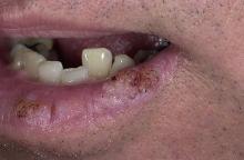 brodawki w jamie ustnej