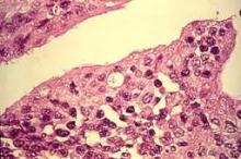 chlamydia pod mikroskopem