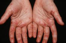 choroba dłoni stóp i jamy ustnej