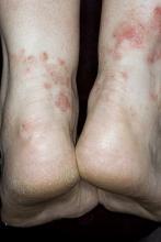 choroba grzybicza stóp