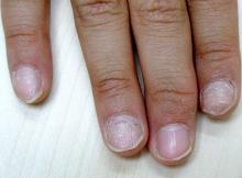 choroby paznokci jak wyglądają