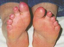 czerwone palce u nóg
