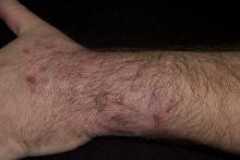 dermatomikoza ręki