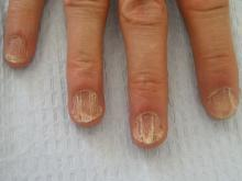 dwadzieścia paznokci choroba