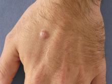 fibroma durum