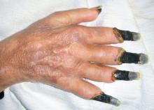 gangrena objawy zdjecia