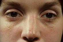 gruczolak potowy pod oczami