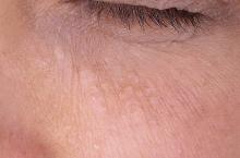 gruczolak potowy pod okiem