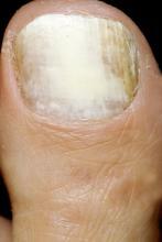 grzybica paznokcia galeria