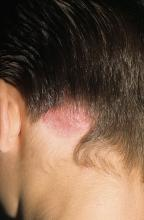 grzybica skóry głowy leczenie domowe